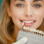 Оттенок зубной эмали